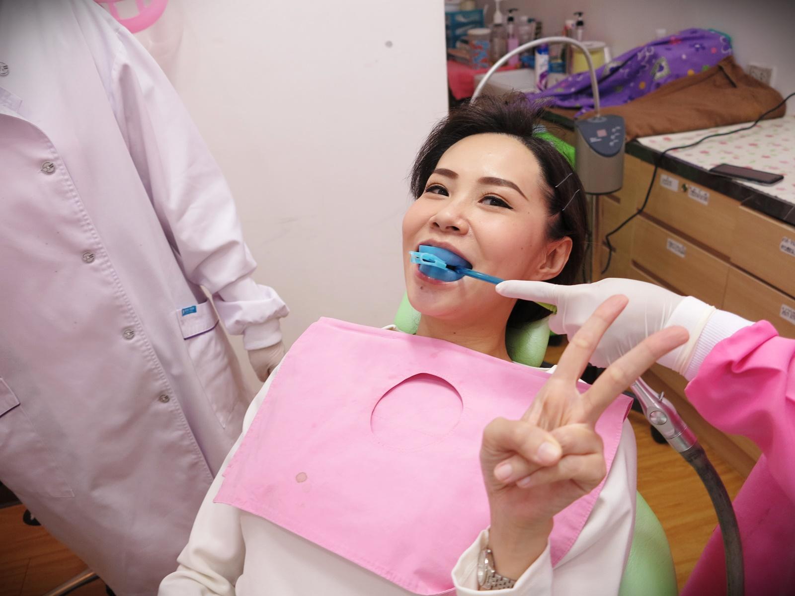 Cosmetic,Dentistry,thailand,bangkok,กรุงเทพ,ทันตกรรมความงาม,เคลือบ,ฟูลออไรด์,Dental,Smart,Clinic,dentalsmartclinic, รีวิว,ฟัน,ขาว,Cool Light,ฟอกสีฟัน,หมอแพรว,คลินิก,ทันตกรรม, เด็นทอลสมาร์ท,เดอะไนท์,เซ็นเตอร์,พระราม9,The Nine,Rama9, โปรโมชั่น,ฟอกฟันขาว,ฟอก,สีฟัน,ยิ้มสวย,ฟันเหลือง,เขรอะ,ฟันขาว,สะอาด,   ประสบการณ์,เร่ง,ด่วน,เห็นผล,ทันตแพทย์,หมอฟัน,ตรวจ, ซื้อ,น้ำยา,ฟันด่าง,บูลไลท์,Blue Light,เหลือง,สะสม,หมอง,ด้วยตัวเอง,เอง,ที่บ้าน, เสียวฟัน,ยาสีฟัน,ชุดเจล,ผงขัดฟัน,สูงอายุ,คนแก่,แสงเย็น,Cool,light,whitening, ถูก,ขาวขึ้น,สาเหตุ,ฟันตาย,คล้ำ,In-office,tooth,Laser,เลเซอร์,คูลไลท์,Home,bleaching, ผล,ถาวร,  ข้อดี,ง่าย,เร็ว,วีเนียร์,Veneer,โรคเหงือก,ฟันเสื่อม,ฟันผุ,ครอบฟัน,เตรียมตัว,ก่อนทำ,หลังทำ,ดูแล,ข้อห้าม, แพ้,ฉายแสง,Oral Care,Colgate,Sensitive,Pro-Relief,อาการ,แก้,นานไหม,ราคา,ถาด,ที่ไหนดี,VITA,Toothguide,3D,MASTER,